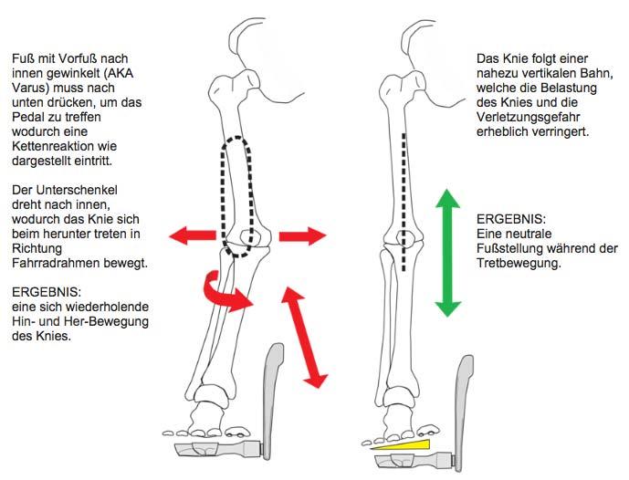 Grafik Knieerhebung
