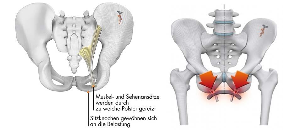Becken-Grafik mit Schmerzpunkten und Muskel- und Sehnenansätze