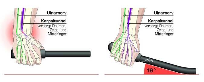 Richtige Lenkerbiegung für das Handgelenk